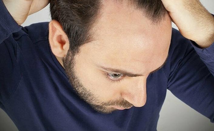 Stres erkeklerde saçları döküyor!