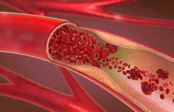 Bacak Damar Tıkanıklıklarında Öncelik İlaç Tedavisinde