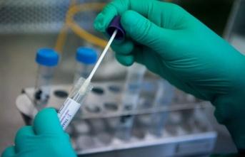 Corona virüs aşısı hayvan deneyi aşamasına geldi!