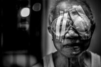 Kardeş eli katarakt projesini Afrika'ya taşıyor