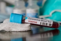 Corona testi sadece bu Hastanelerde yapılıyor