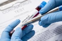 Türkiye'deki Corona Virüs Vakasına Karşı Üniversitemizde Alınan Önlemler