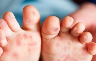 Çocuklarda el-ayak, Ağız hastalığı hastalığına...